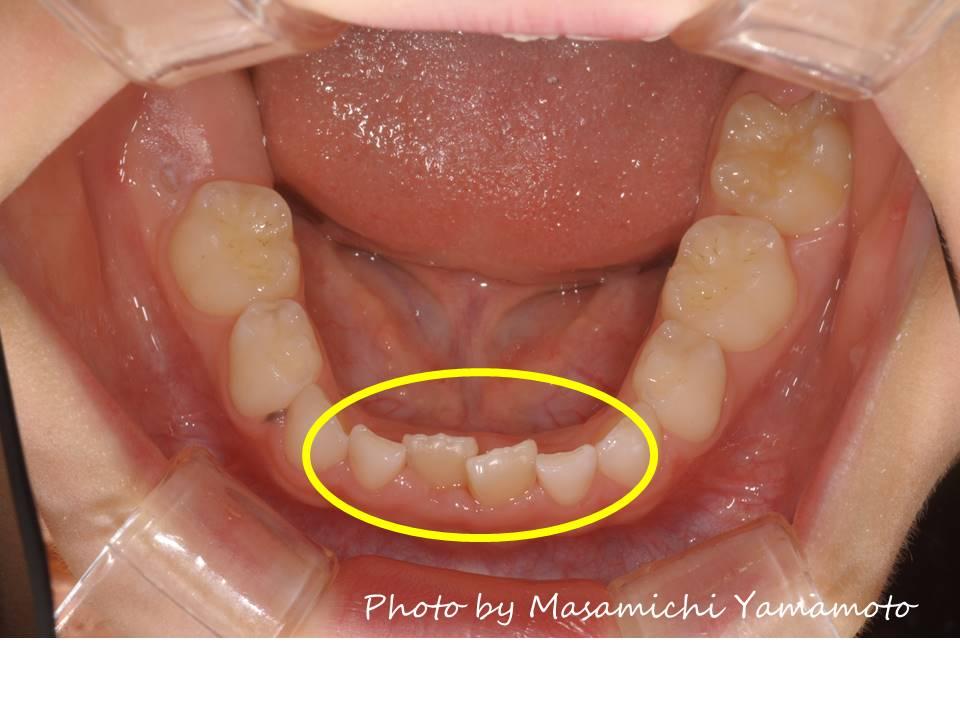 矯正 歯並び
